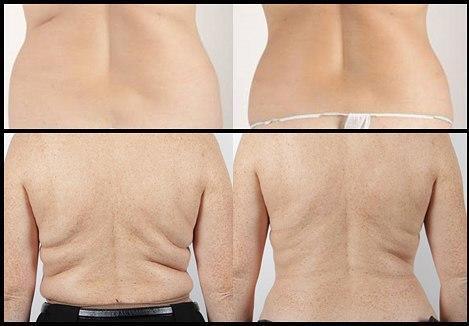 centimetri pierduți fără pierdere în greutate