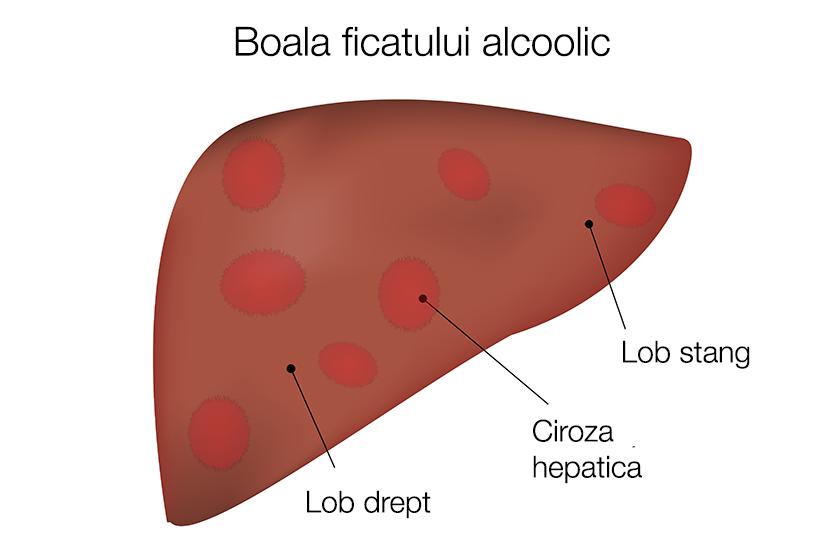 Ciroza hepatica | pvctermopane.ro