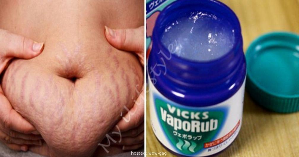 obez slim down beneficiile scăderii în greutate ashwagandha