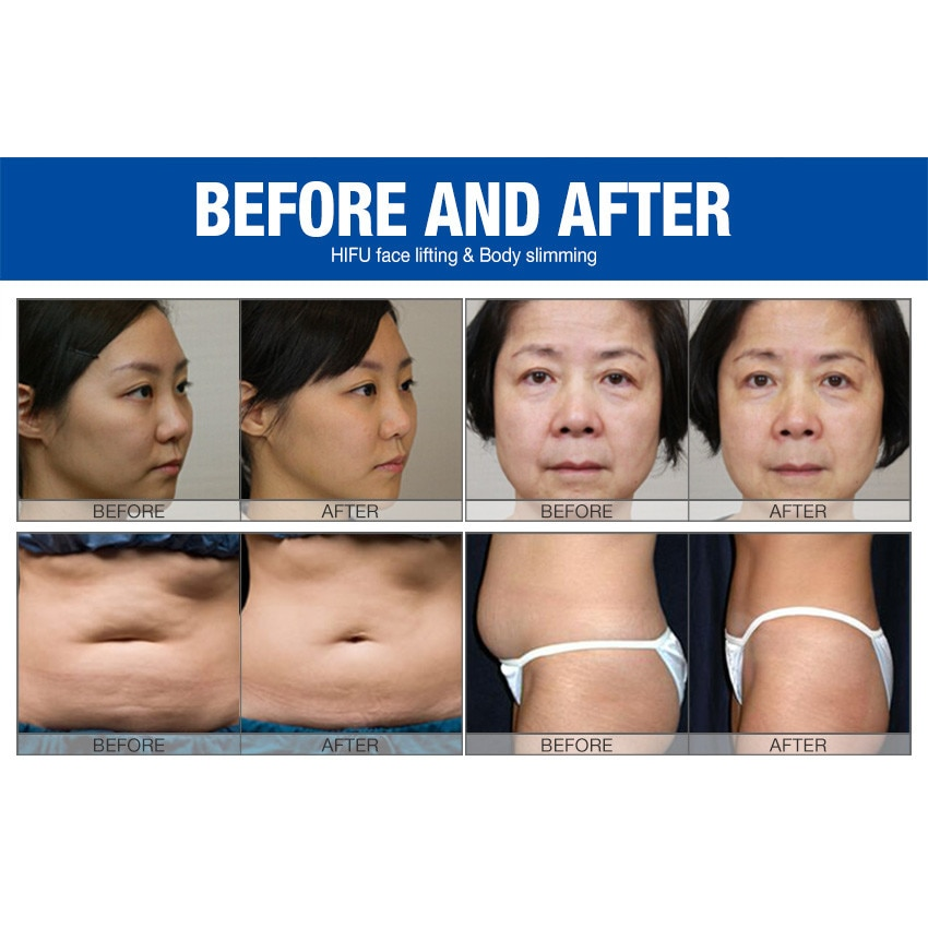 rezultatele pierderii în greutate px90 ajută mă să pierd rapid în greutate vă rog