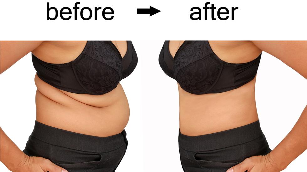 Pierde in greutate timp de 5 luni la 25 kg