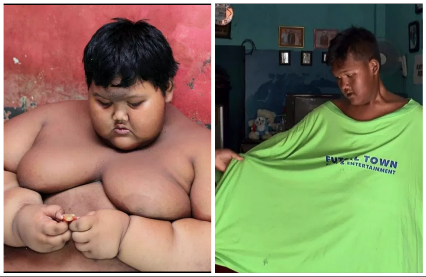 im obez cum să piardă în greutate)