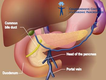 Pierderea a doar 1 gram de grăsime în pancreas poate inversa diabetul de tip 2