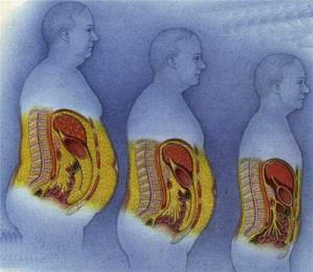 îndepărtați celulele grase din corp)