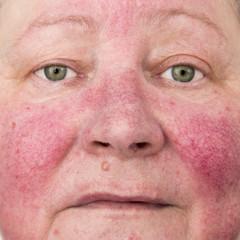 Sfaturi de ingrijire a pielii pentru pacientii care au cuperoza