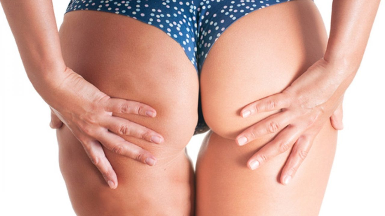 celulita pierde in greutate dispar