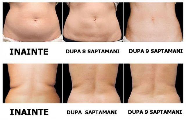 Saună pierdere în greutate înainte și după