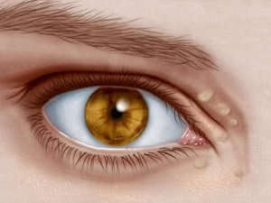 îndepărtați tampoanele de grăsime pentru ochi