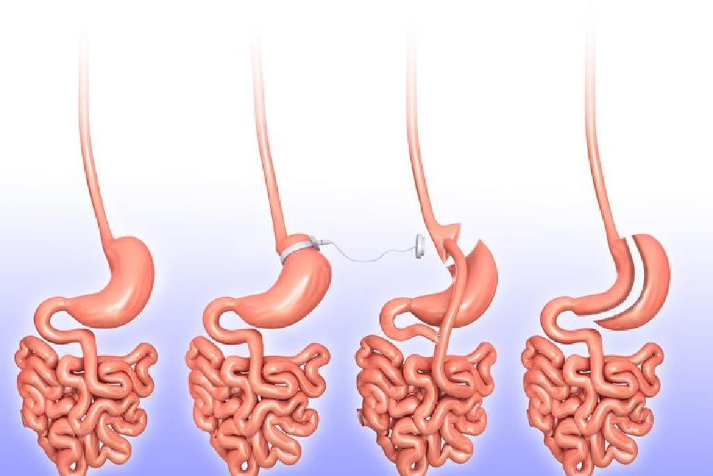 Chirurgie pierderea in greutate. Cum de a Reduce grasime?
