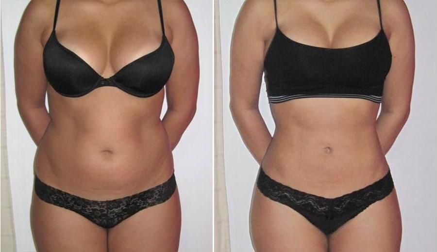 Articole noi ce determina scaderea inexplicabila in greutate