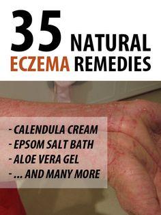 Eczeme: ce este, cauze, simptome, prevenire și tratamente