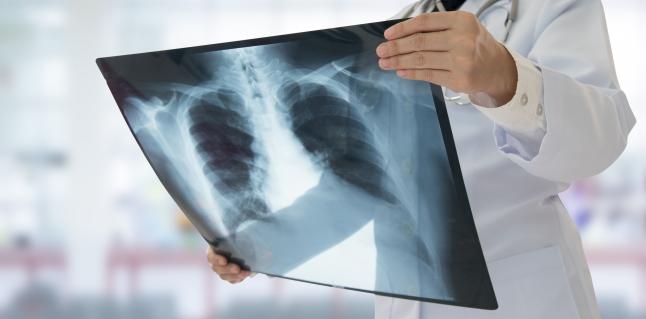 pierdere în greutate tbc 2