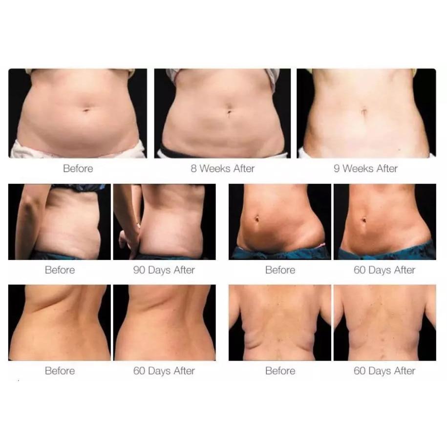 procentul de grăsime corporală la pierderea în greutate
