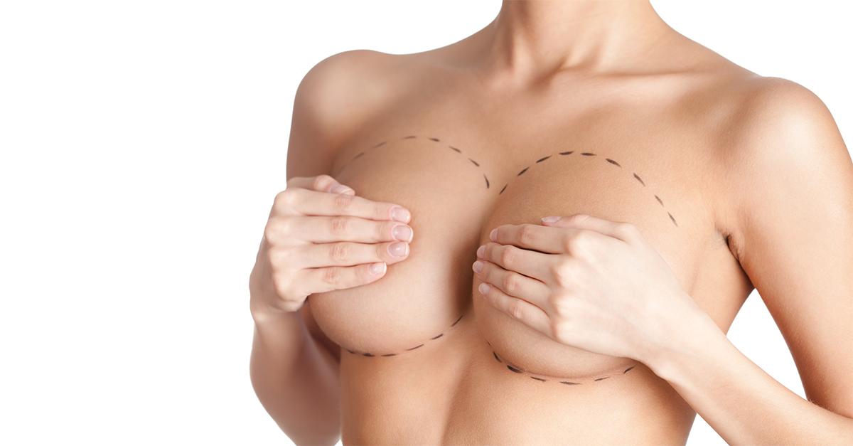 schimbările mamelonului de pierdere în greutate