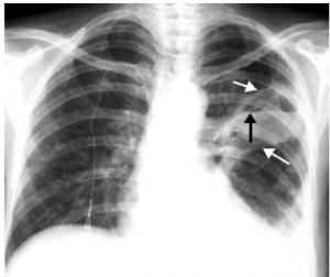 scăderea în greutate a abcesului pulmonar pierdere în greutate CklS