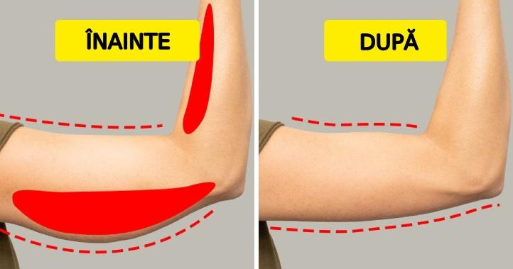 îndepărtați grăsimea buricului după pierderea în greutate