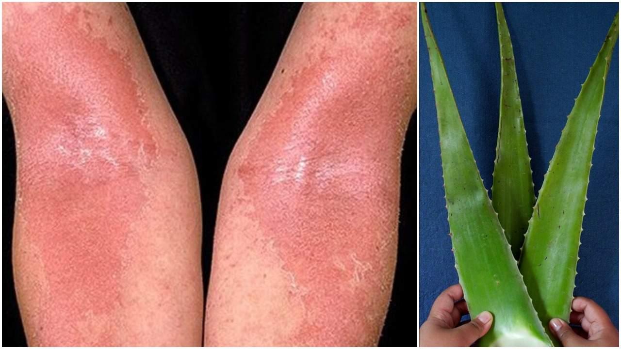 eczema după pierderea în greutate)