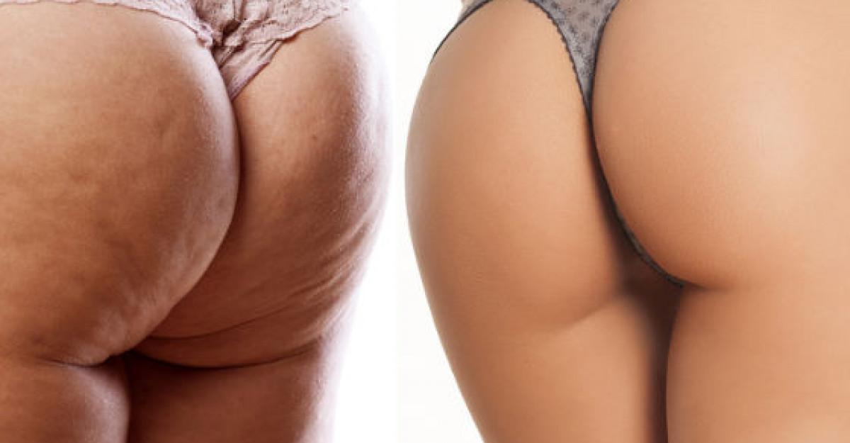 produse care vor scapa de celulita, Pierderea în greutate va scăpa de celulită