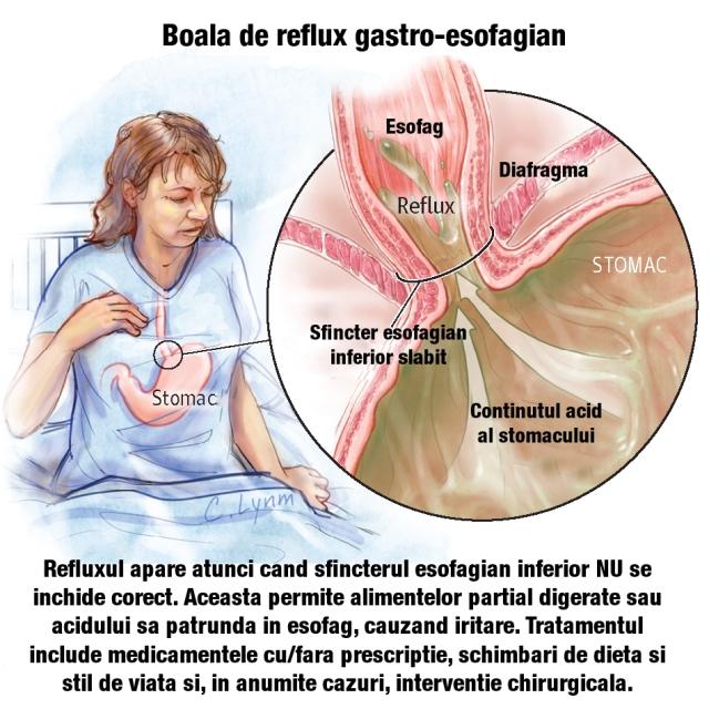 pierderea în greutate care cauzează reflux